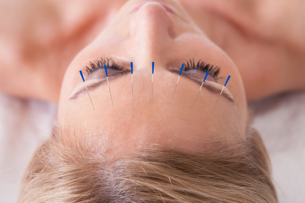 A woman has acupuncture needles in her forehead.