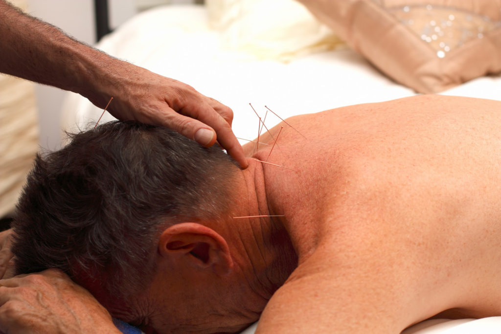A man receives acupuncture in his neck.