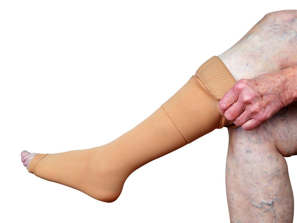 Senior woman wearing compression stockings.