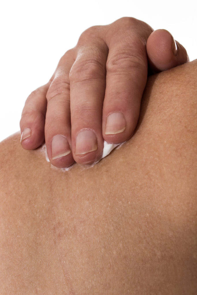 A senior woman uses pain cream on her shoulder.
